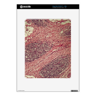 Stomach cancer cells under the microscope. decal for the iPad