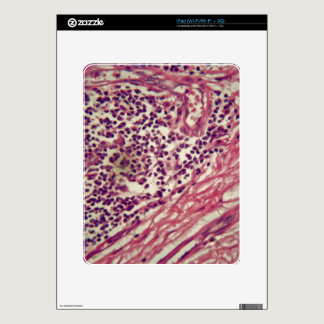 Stomach cancer cells under the microscope. decals for iPad
