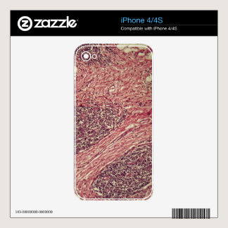Stomach cancer cells under the microscope. decals for the iPhone 4S