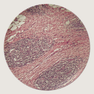 Stomach cancer cells under the microscope. dinner plate