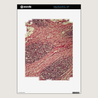 Stomach cancer cells under the microscope. iPad 2 decals