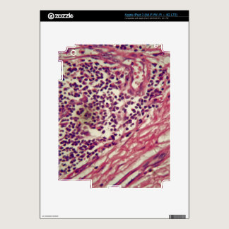 Stomach cancer cells under the microscope. iPad 3 skin