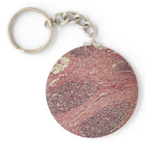 Stomach cancer cells under the microscope. keychain