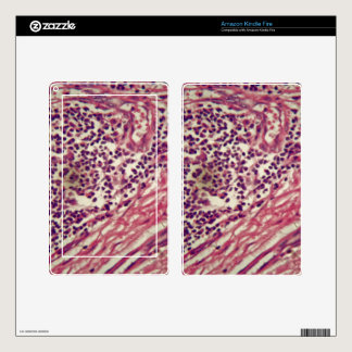 Stomach cancer cells under the microscope. kindle fire decal