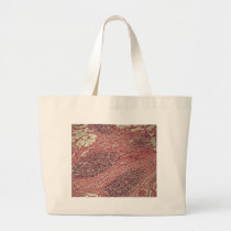 Stomach cancer cells under the microscope. large tote bag