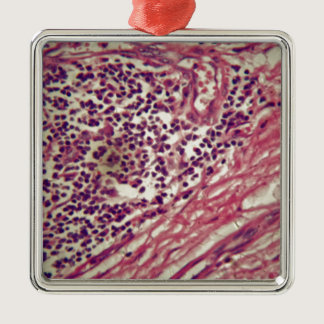 Stomach cancer cells under the microscope. metal ornament