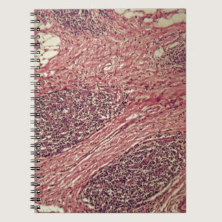 Stomach cancer cells under the microscope. notebook