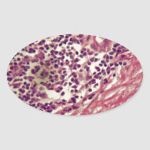Stomach cancer cells under the microscope. oval sticker