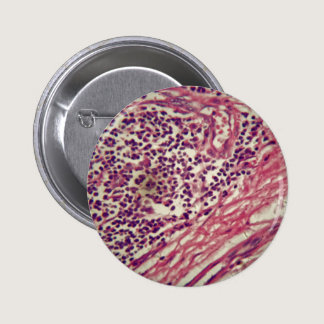 Stomach cancer cells under the microscope. pinback button