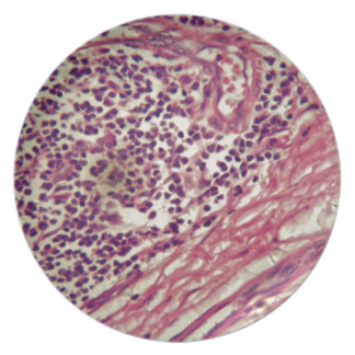 Stomach cancer cells under the microscope. plate