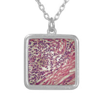 Stomach cancer cells under the microscope. silver plated necklace