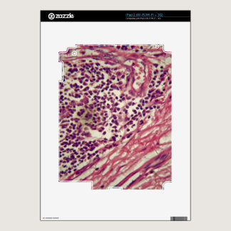 Stomach cancer cells under the microscope. skins for the iPad 2