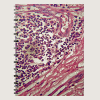 Stomach cancer cells under the microscope. spiral notebook