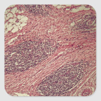 Stomach cancer cells under the microscope. square sticker
