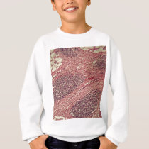 Stomach cancer cells under the microscope. sweatshirt