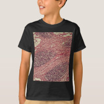 Stomach cancer cells under the microscope. T-Shirt