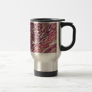 Stomach cancer cells under the microscope. travel mug