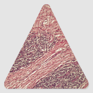 Stomach cancer cells under the microscope. triangle sticker