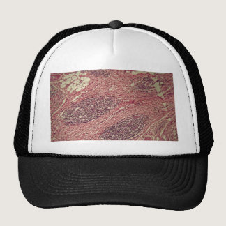 Stomach cancer cells under the microscope. trucker hat