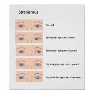 Strabismus eye defect Poster