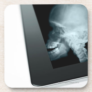 Studio shot of digital tablet with x-ray of beverage coasters