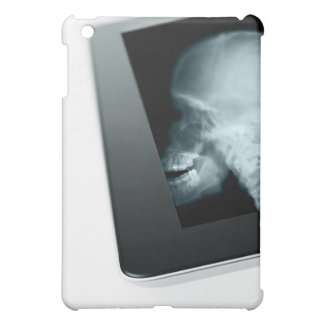 Studio shot of digital tablet with x-ray of cover for the iPad mini