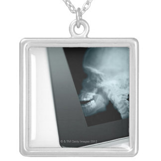 Studio shot of digital tablet with x-ray of square pendant necklace