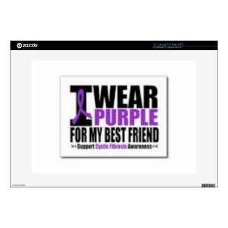 Support cystic fibrosis research decal for laptop