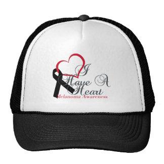 Support Melanoma Black Ribbon Awareness Trucker Hat
