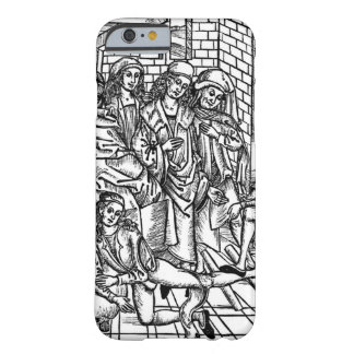 Surgeon directs as an assistant breaks and resets barely there iPhone 6 case