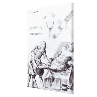 Surgical operation to amputate a leg canvas print