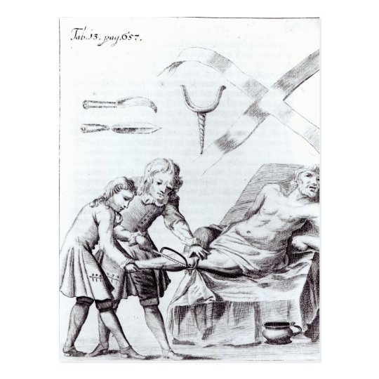 Surgical operation to amputate a leg postcard