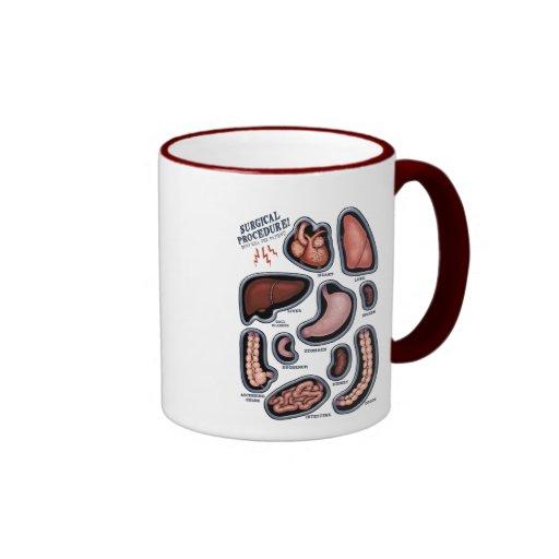 Surgical Procedure! Coffee Mugs