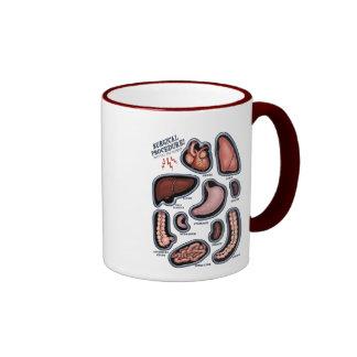 Surgical Procedure Coffee Mugs