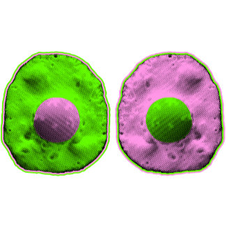 ➢ Pink & Green Fried Eggs