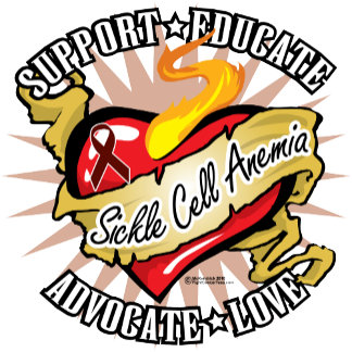 Sickle Cell Anemia Classic Heart