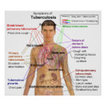 Symptom Chart of Tuberculosis in Humans Posters