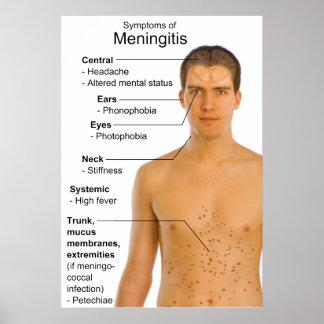 Symptoms Chart of Inflammation Disease Meningitis