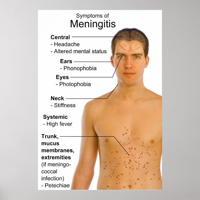 Symptoms Chart of Inflammation Disease Meningitis Print