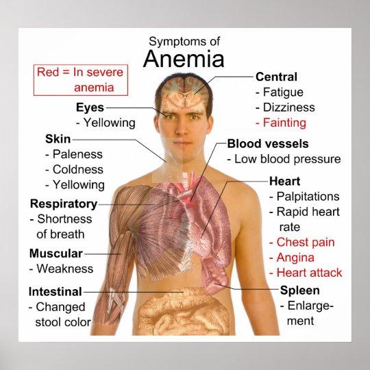 sickle cell anemia symptoms pdf