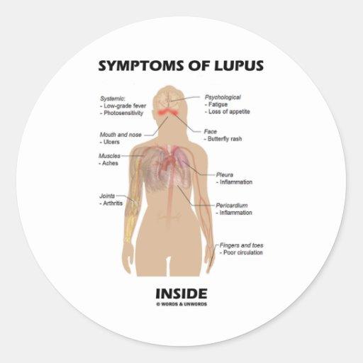 Symptoms Of Lupus Inside (Autoimmune Disorder) Stickers