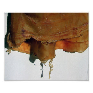 Tapiz del caucho del látex poster