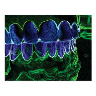 Tarjeta modelo del Orthodontist del dentista de Tarjetas Postales