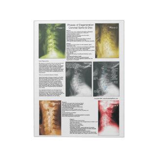 Tear Off Pad Cervical Spinal Degeneration Notepads