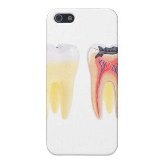 Teeth Anatomy Case For iPhone 5