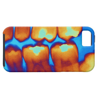 Teeth with fillings green coloured X-ray iPhone 5 Covers