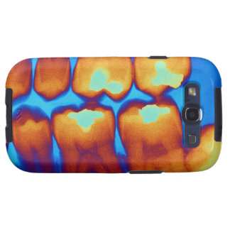 Teeth with fillings (green), coloured X-ray. Galaxy SIII Covers