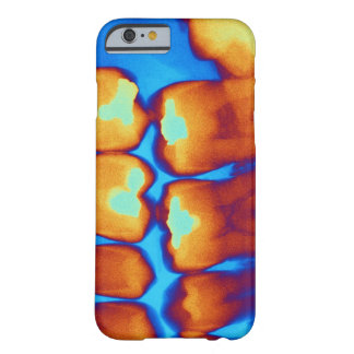Teeth with fillings (green), coloured X-ray. Barely There iPhone 6 Case
