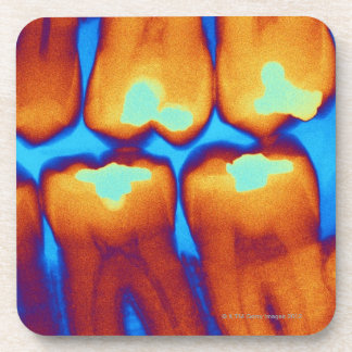 Teeth with fillings (green), coloured X-ray. Beverage Coasters
