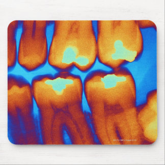 Teeth with fillings (green), coloured X-ray. Mouse Pad